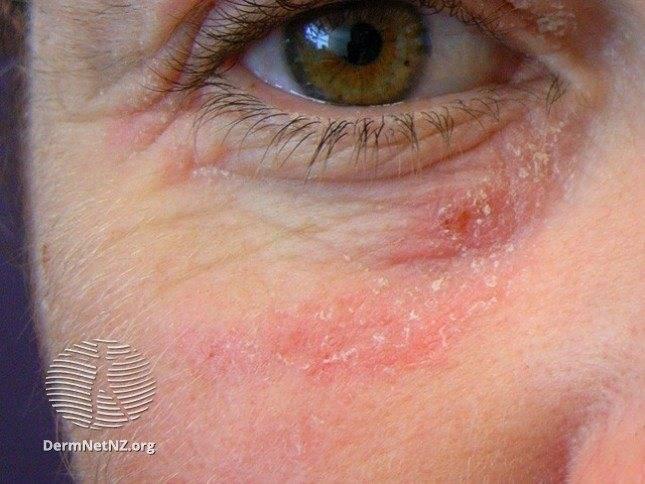 Каковы причины аллергического дерматита век?