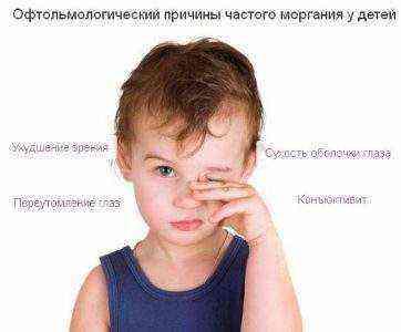Ребенок часто моргает глазами: почему и что делать