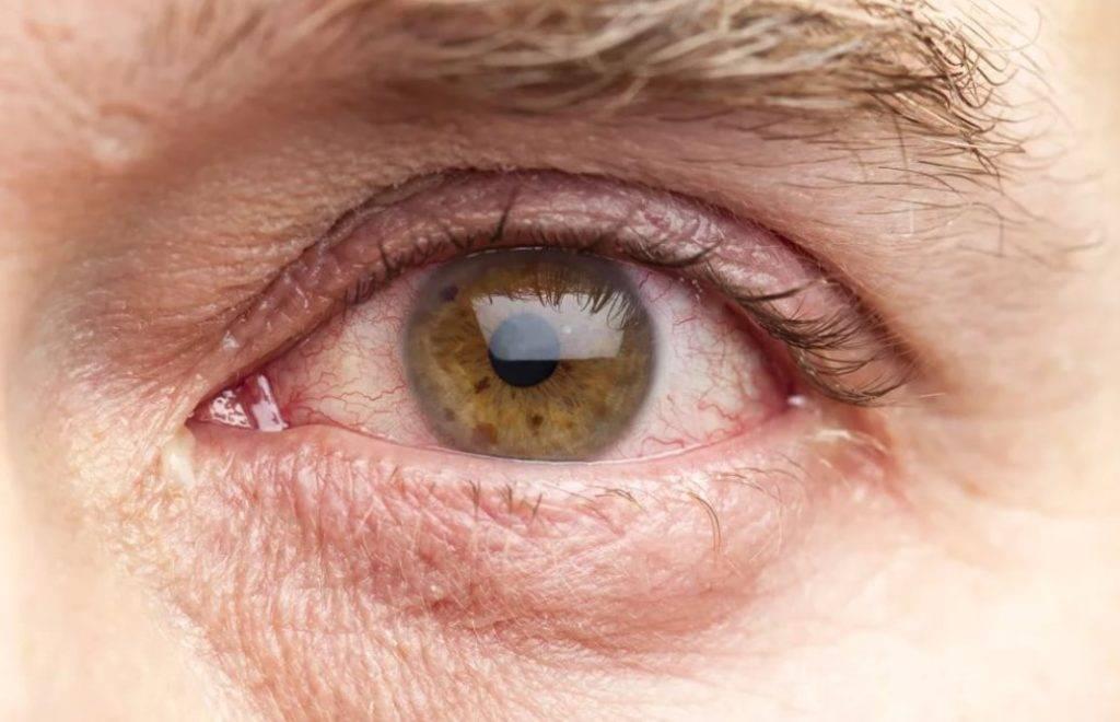 Как снять напряжение, если болят глаза от компьютера