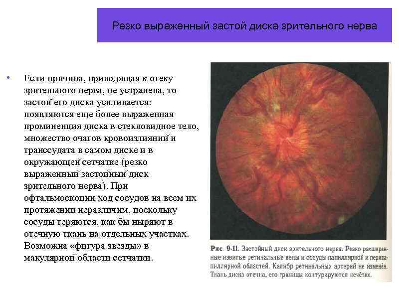 Отек диска зрительного нерва причины – лечение артроза и артрита, лечение подагры