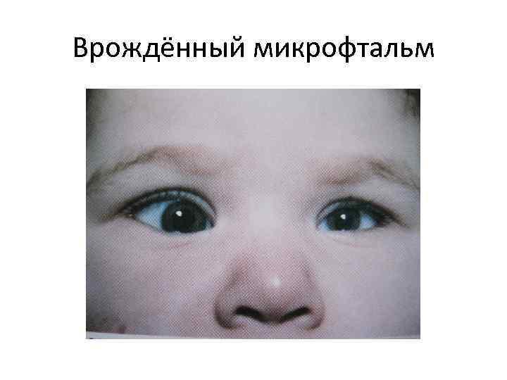 Микрофтальм у детей