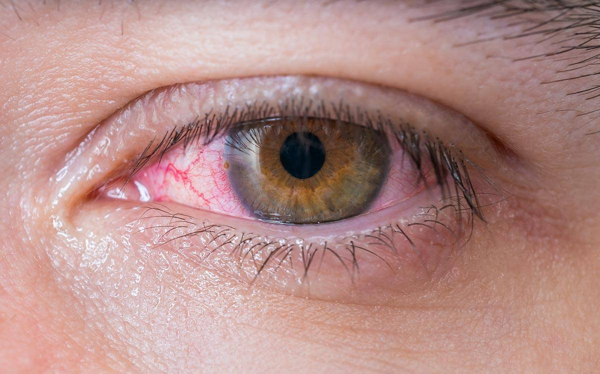 Кератоконъюнктивит: симптомы, лечение у взрослых, детей, фото