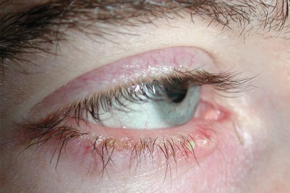 Демодекс глаз: лечение и возможные симптомы у человека