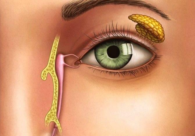 Опасность непроходимости слезного канала уноворожденного: как вылечить дакриоцистит?