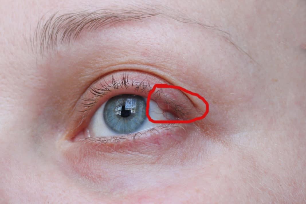Почему появляется киста на глазу и что делать?
