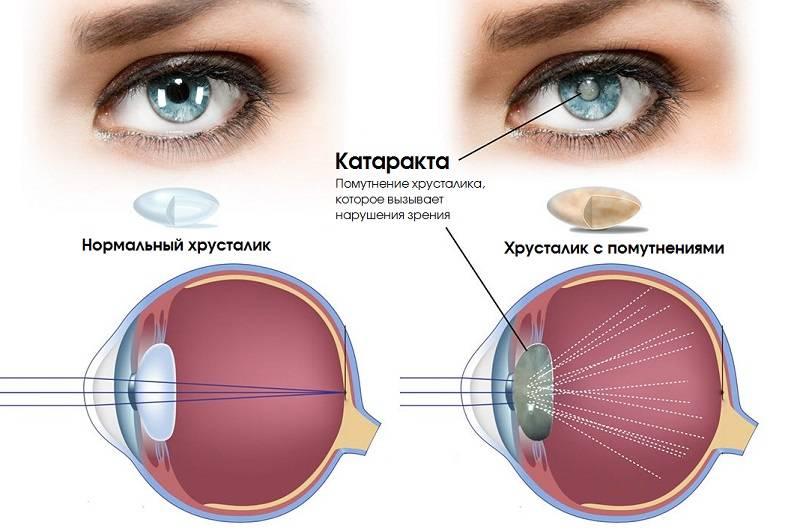 После операции катаракта глаза немного двоится - катарактынет