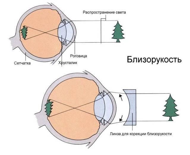 Гиперметропия глаза. причины и лечение гиперметропии (дальнозоркость)