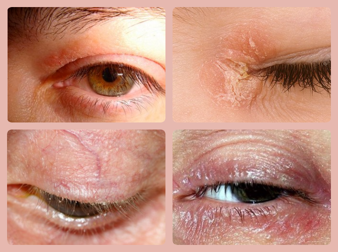 """Шелушатся веки глаз: причины и симптомы - """"здоровое око"""""""