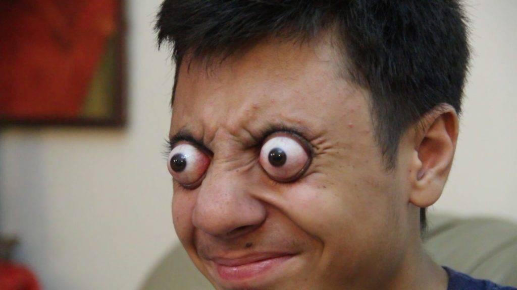 Глаза выпучены   лечение глаз