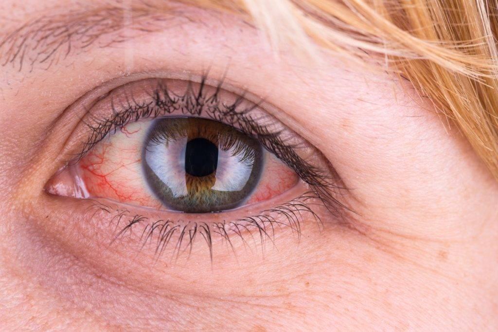 Причины, приводящие к появлению мерцания в глазах