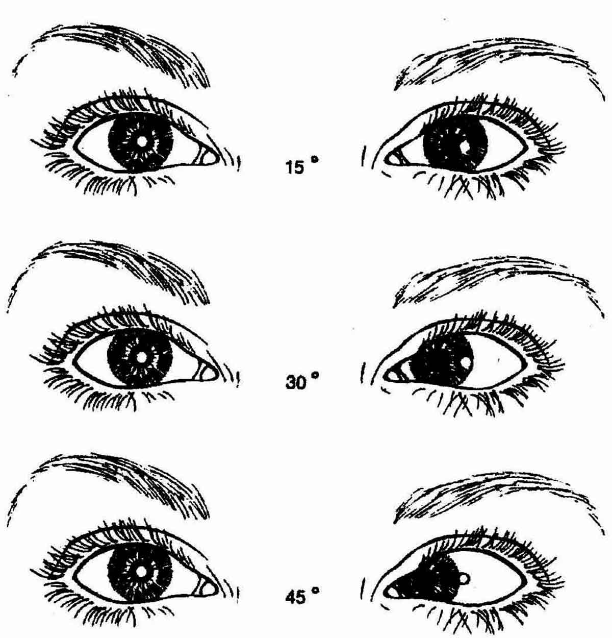 Задание № 2 определение подвижности глаз. определение угла косоглазия по гиршбергу.