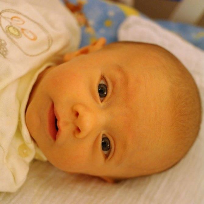 Желтоватые белки глаз у новорожденных и желтое лицо
