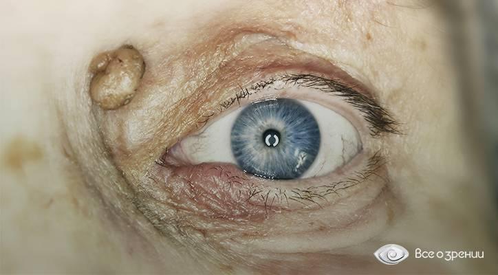 Что такое ксантелазмы и ксантомы: признаки и причины возникновения, медикаментозные и народные способы лечения