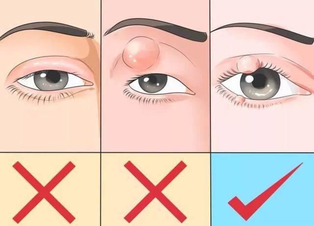 Можно ли греть ячмень на глазу яйцом: сколько минут нужно держать