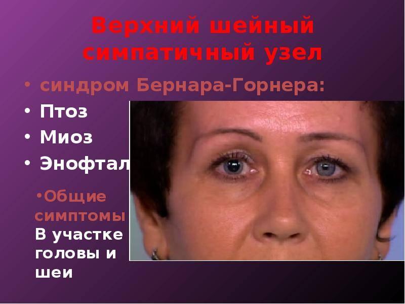 Синдром бернара горнера - причины, симптомы, лечение