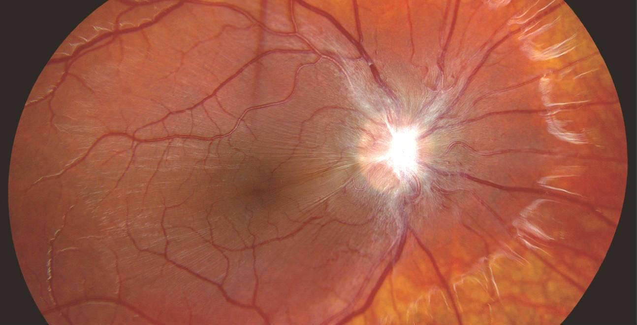 """Эпиретинальный фиброз сетчатки, причины, симптомы, лечение - """"здоровое око"""""""