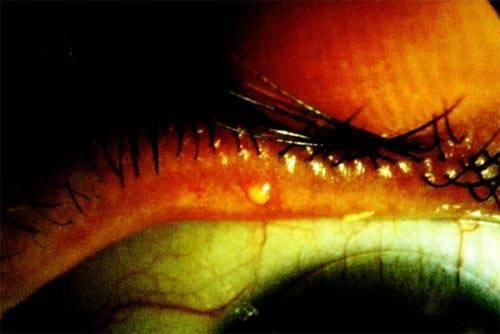 По какой причине возникает мейбомиевый блефарит и основные способы его лечения