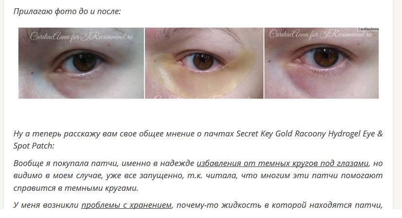 Синяки под глазами