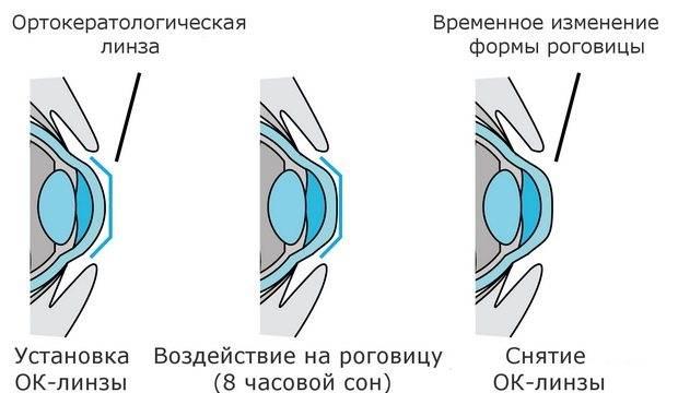 Учимся правильно снимать контактные линзы с глаз в первый раз и доводим процесс до автоматизма