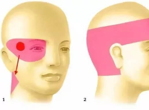 Болит левая часть головы и дергается глаз