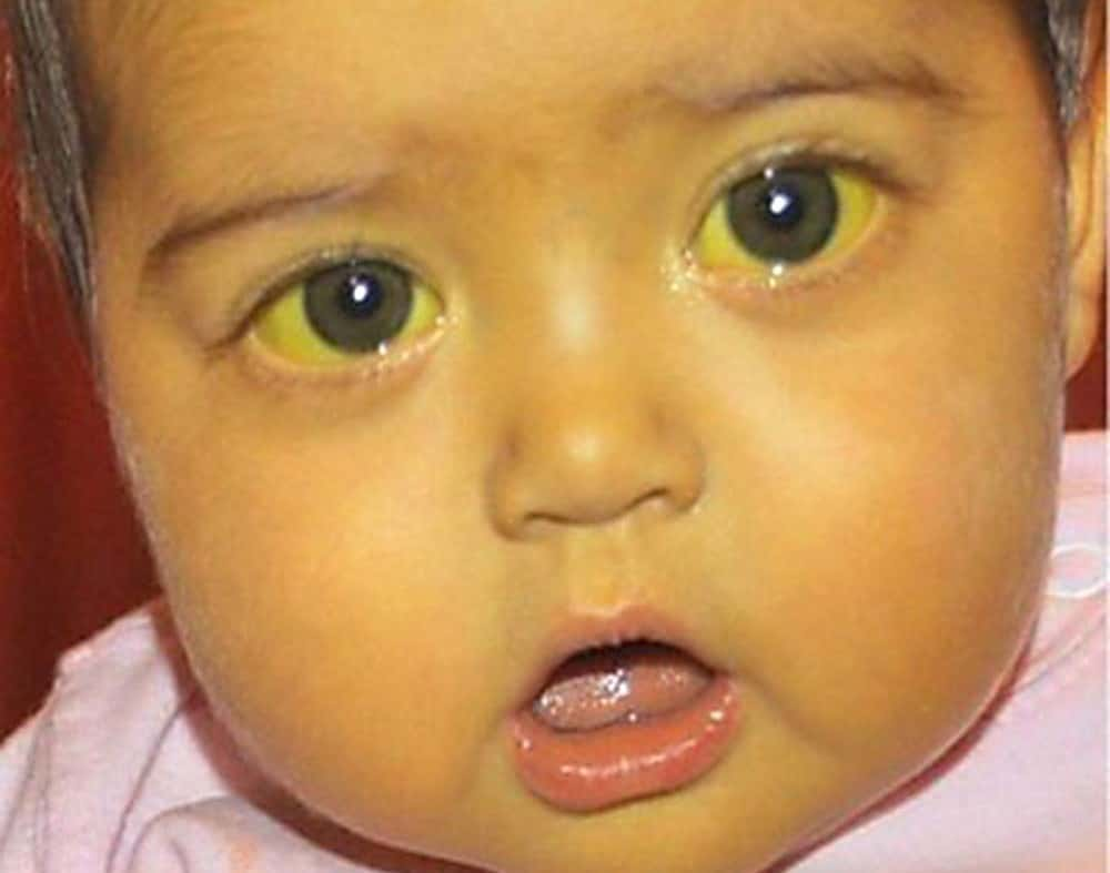 Желтые белки глаз у новорожденных: диагностика, лечение