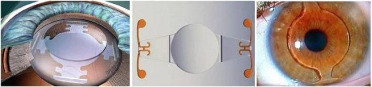 Факичные интраокулярные линзы лучше, чем ласик?