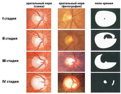 Застойный диск зрительного нерва (дзн)причины, симптомы, диагностика и лечение
