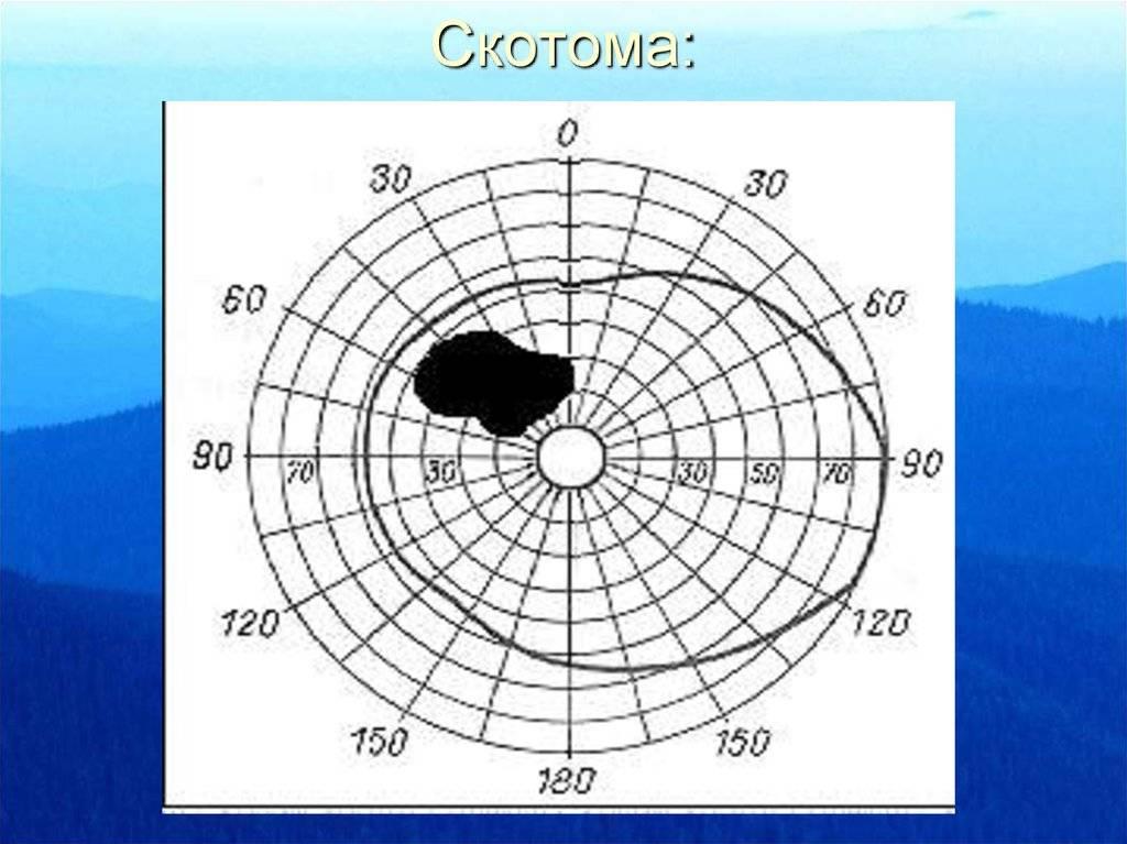 Что такое скотома глаза и как её лечить oculistic.ru что такое скотома глаза и как её лечить