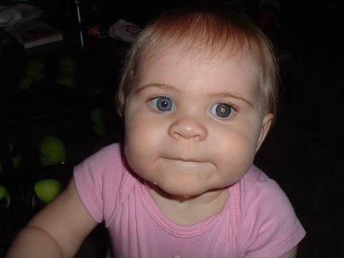 Ретинобластома глаз у детей: причины, симптомы, лечение, фото