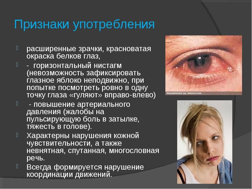 """Расширенный зрачок: причины - """"здоровое око"""""""