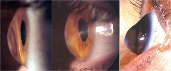 Лазерная коррекция зрения ласик: последствия и особенности операции, противопоказания и отзывы пациентов