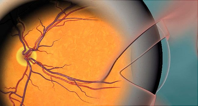 Заболевания сетчатки глаза - список болезней сосудистого происхождения, воспалительные и дистрофические, их симптомы и лечение