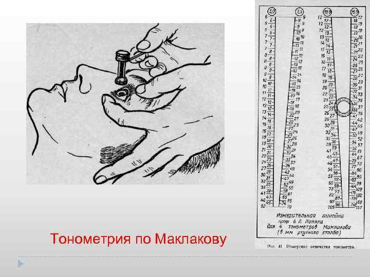 Тонометрия - что это, норма, показания к проведению
