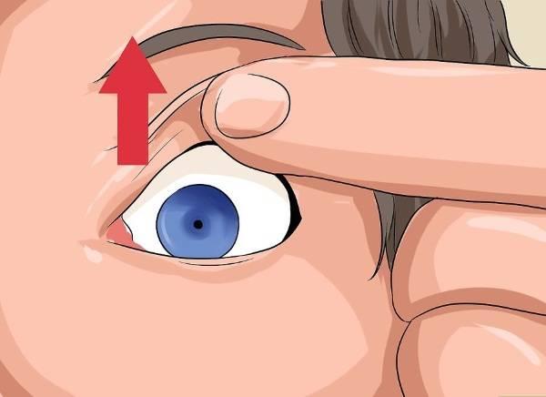 Как вытащить линзу из глаза: инструкция oculistic.ru как вытащить линзу из глаза: инструкция