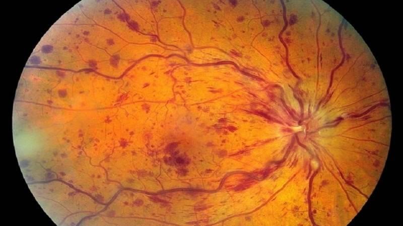 Сужение сосудов глазного дна: причины, признаки и диагностика