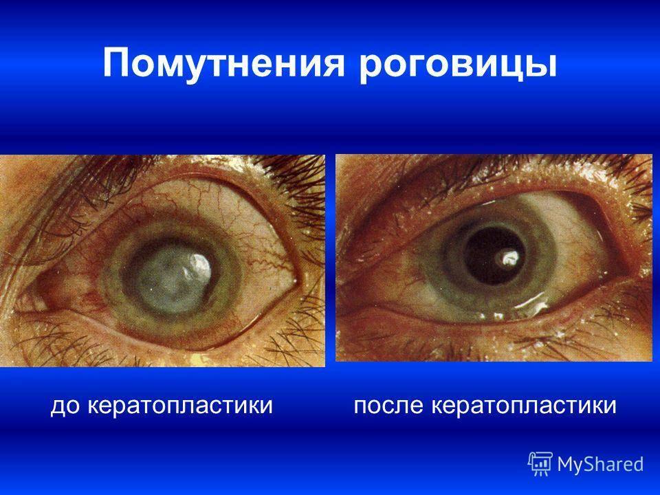 Пересадка роговицы глаза (кератопластика)