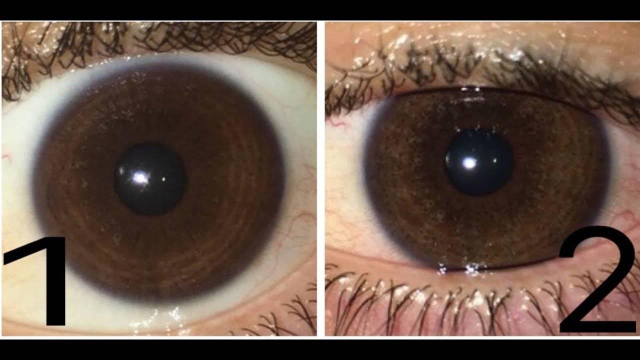 Поможет ли изменить цвет глаз операция или лучше выбрать другой метод?
