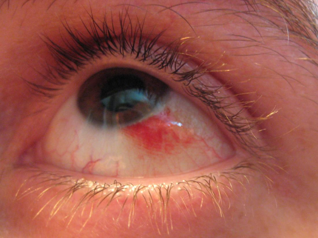 Кровоизлияние в глаз: причины, симптомы и лечение