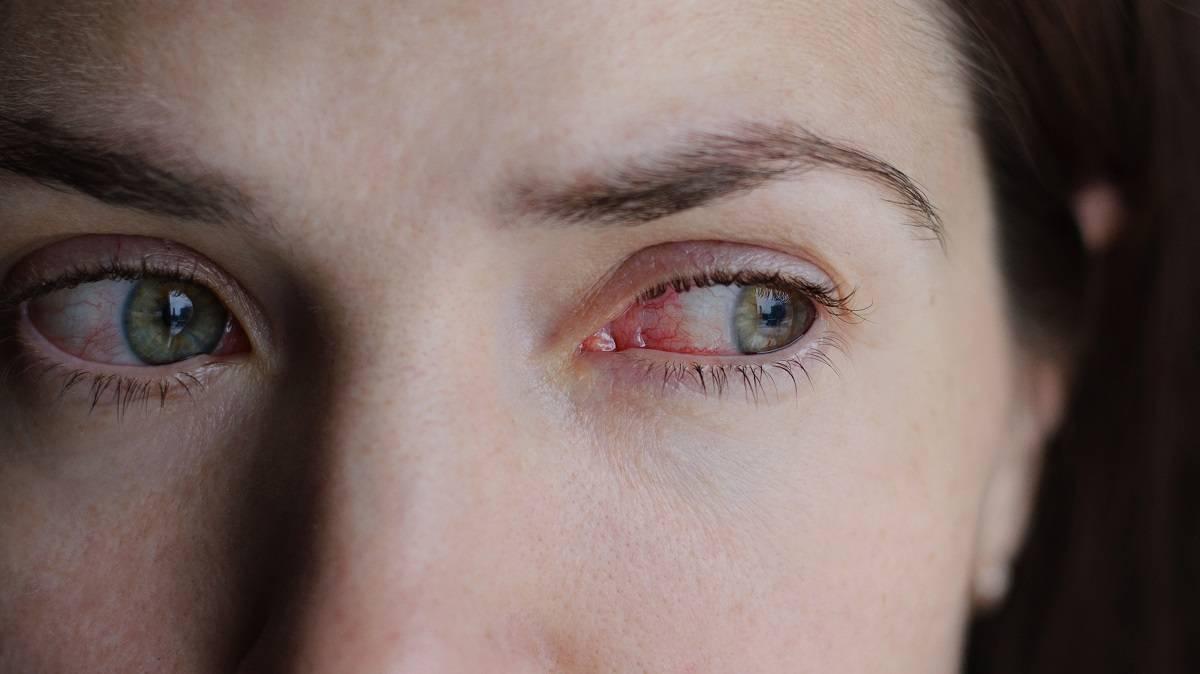 Аллергия на линзы - симптомы и лечение