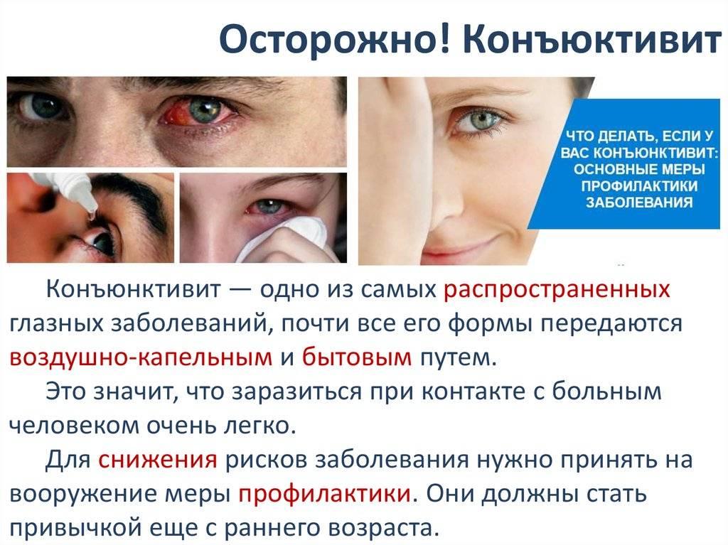Вирусный конъюнктивит: виды, симптомы и лечение | коньюктивит.рф вирусный конъюнктивит: виды, симптомы и лечение | коньюктивит.рф