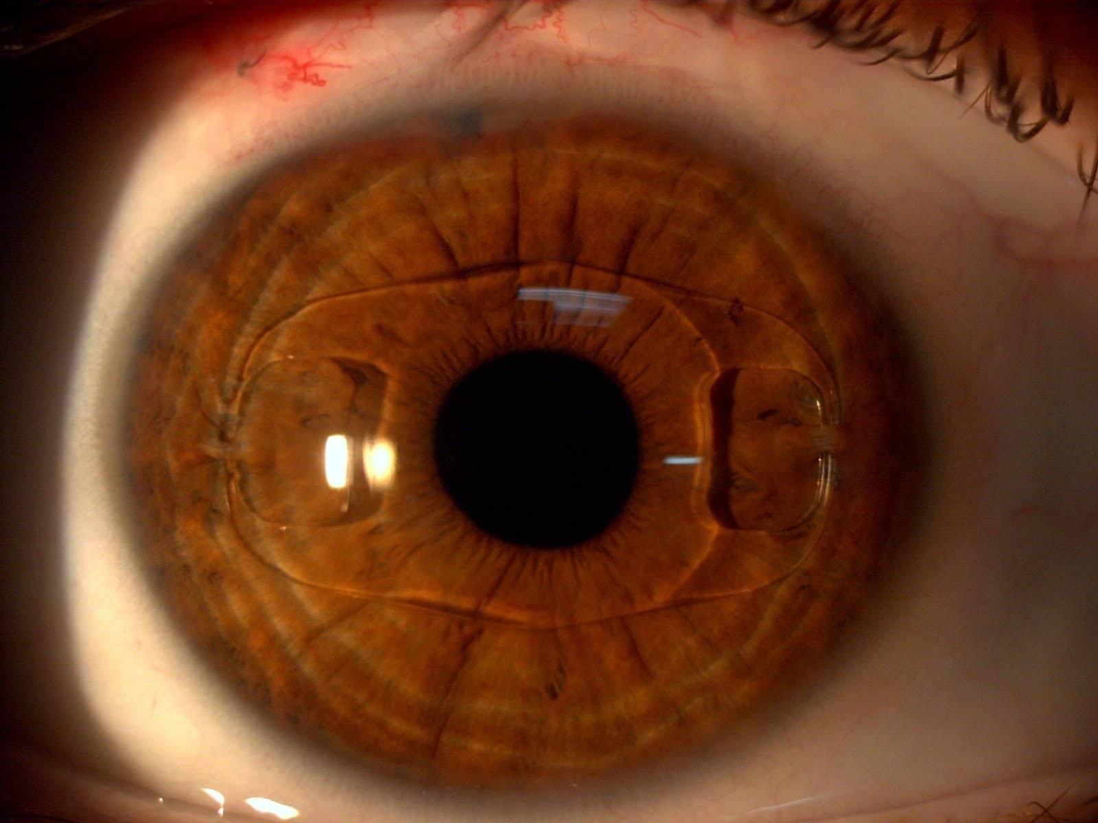 Пелена перед глазами: причины и методы диагностики