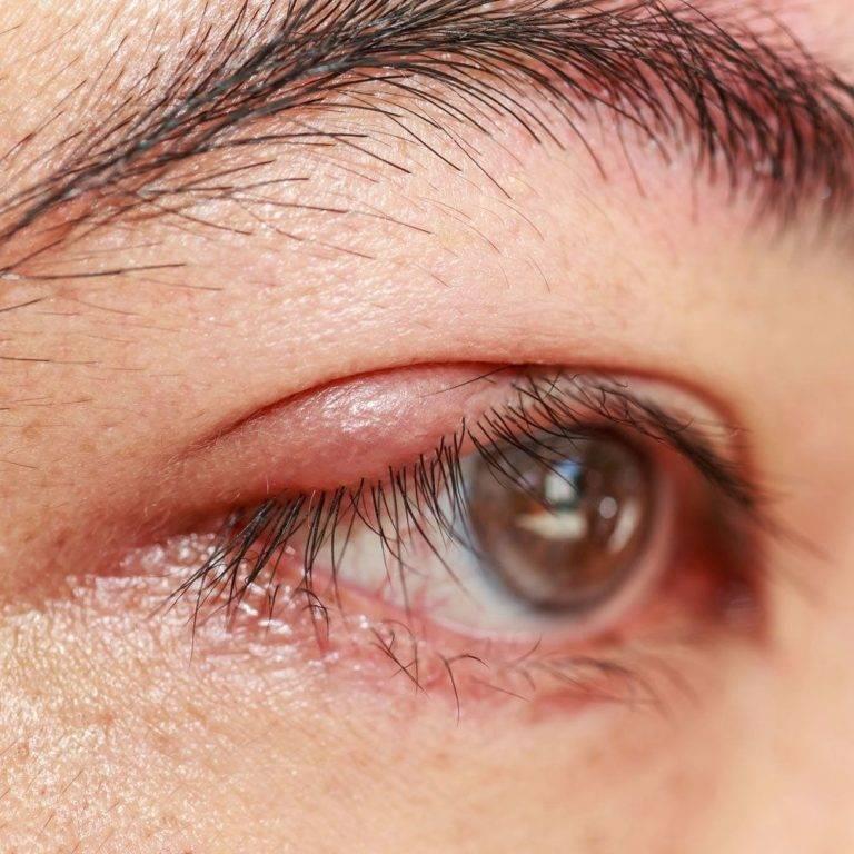 Как лечить простуду глаза в домашних условиях. лечение традиционными методами. как выглядит простуда на глазах