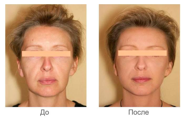 Как сделать лицо симметричным: причины асимметрии лица, корректировка косметикой, выполнение специальных упражнений, регулярность проведения и результаты