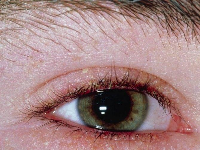 Демодекс — ресничный клещ: симптомы и лечение