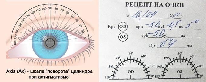 Астигматические очки – как выглядят линзы при астигматизме с диоптриями