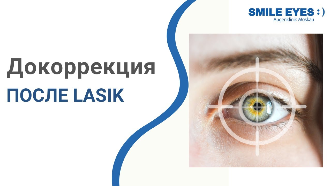 Осложнения и риски операции лазерной коррекции зрения relex smile