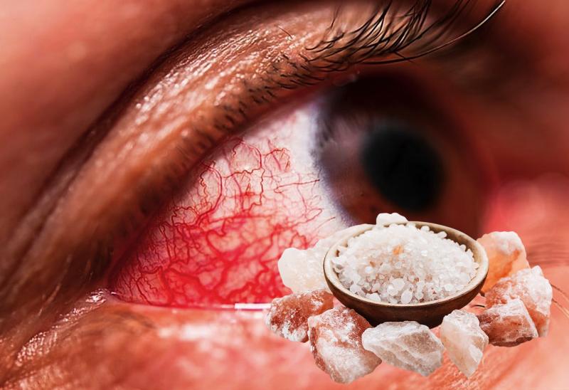 Лечение глаз народными средствами | здоровый дом