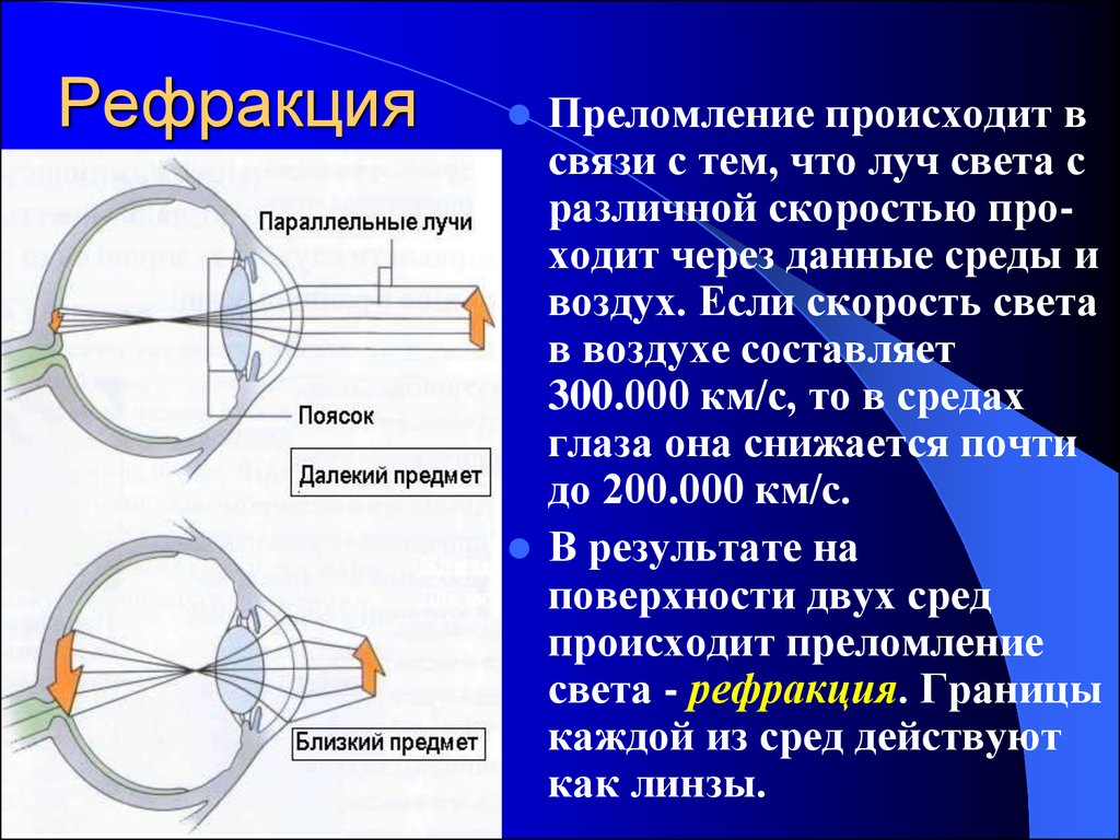Рефракция глаза у детей: что это такое, как определить