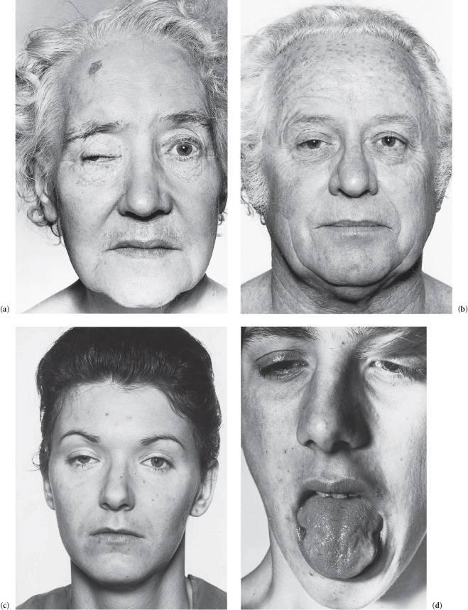 Миопатия, что это такое, причины возникновения и лечение
