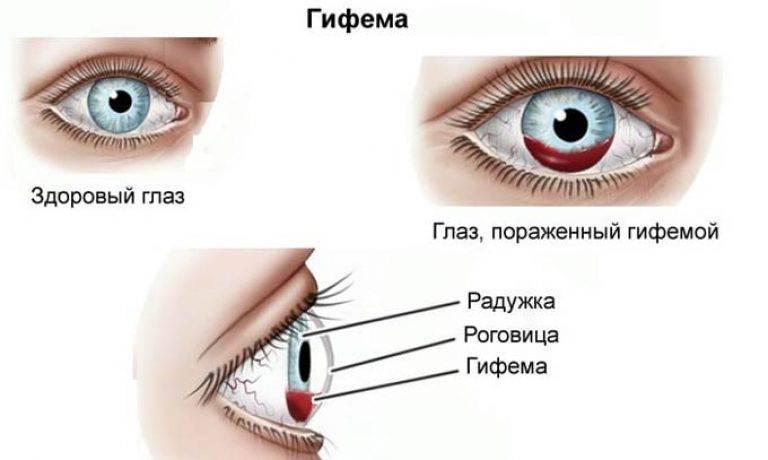 Контузия глаза: какие бывают степени и последствия?